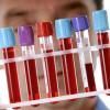 Анализы крови – все заболевания «как на ладони»!