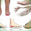 Преимущества использования детской ортопедической обуви