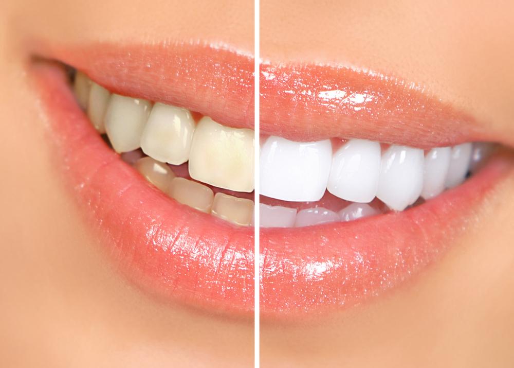 Процедура отбеливания зубов с привлечением настоящих профессионалов