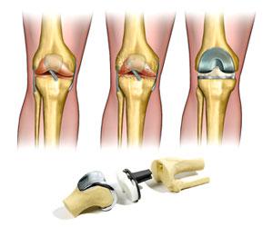 Протезирование коленного сустава, после каких заболеваний нужно делать операцию