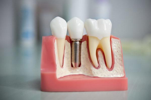 Отзывы до и после имплантации зубов в стоматологии