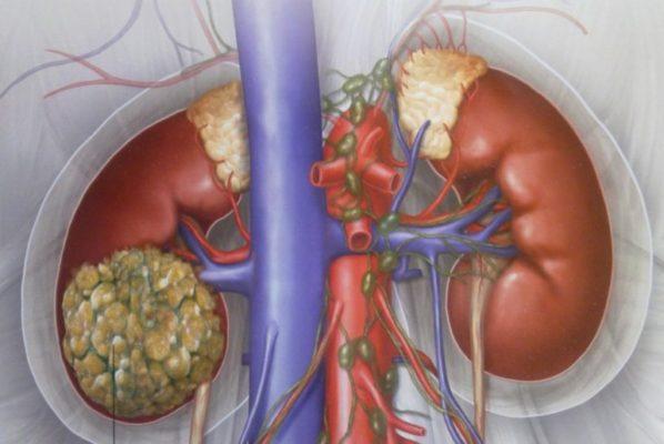 Особенности диагностики, лечения и профилактики рака почек