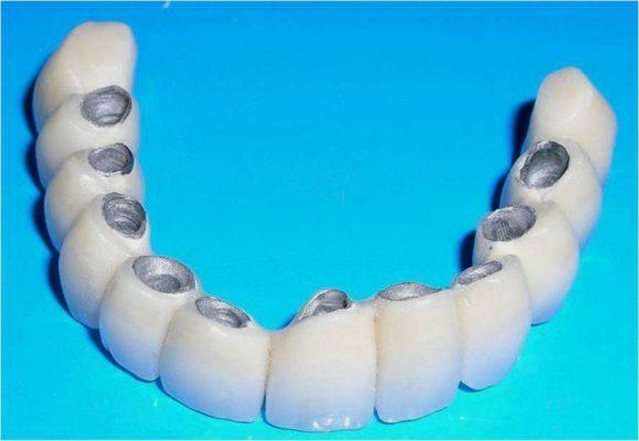 Протезирование зубов с помощью металлокерамики: преимущества и особенности